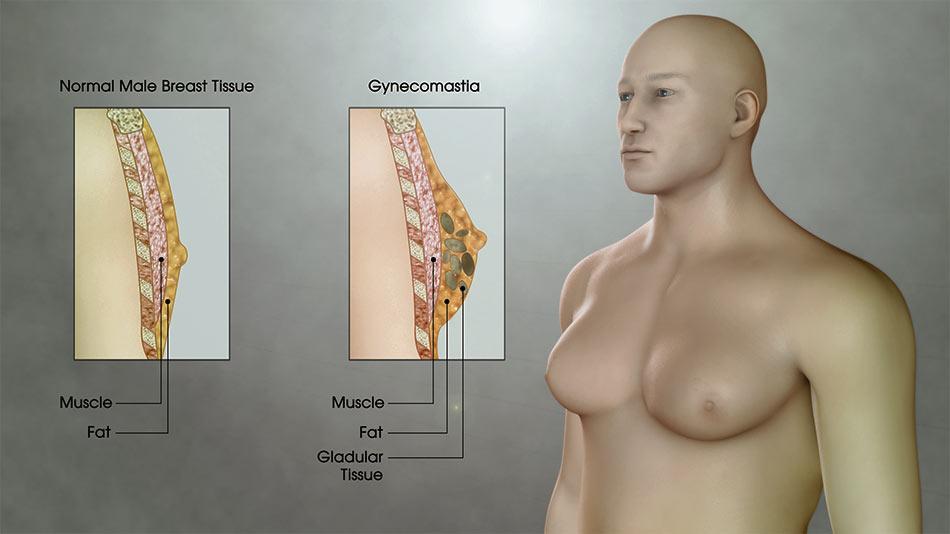 التثدي عند الرجال الأسباب والعلاج